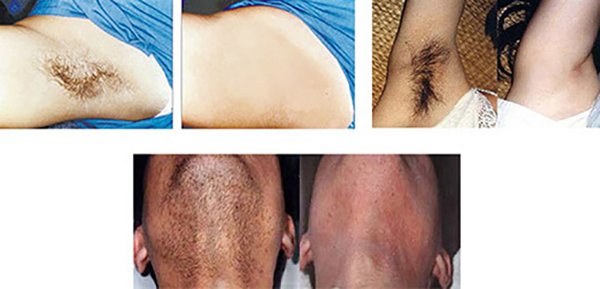 800W Diode Laser Hair Removal treatment effect