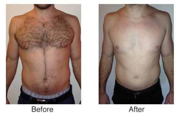 Diode Laser Hair Removal Treatment effect