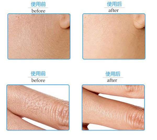 Diode laser Hair Removal effect.3