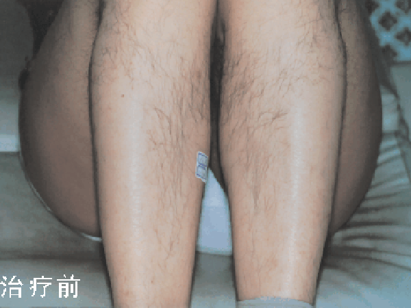 .Fast hair removal treatmrnt effect
