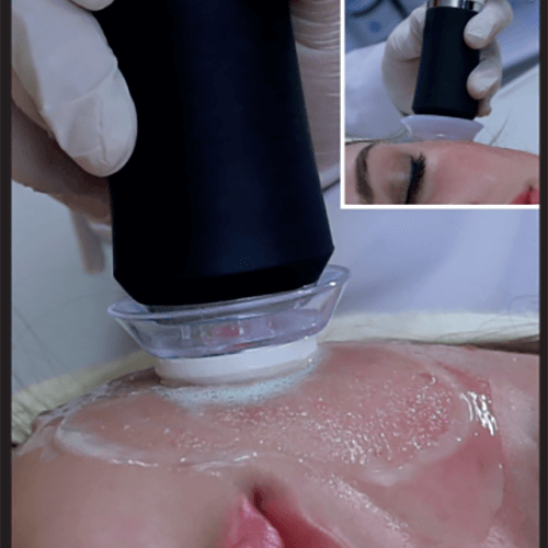 Hydra facial Tretament Skin Cleaning