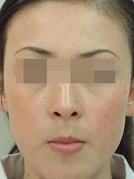 IPL System For skin rejuvenstion DT-102 comparison photo after 2