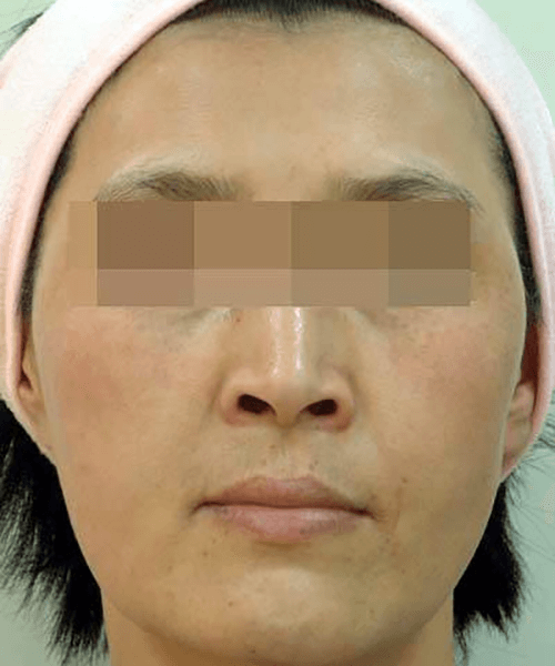 OPT DPL wrinkles treatment effect.
