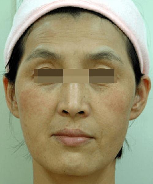 OPT DPL wrinkles treatment effect