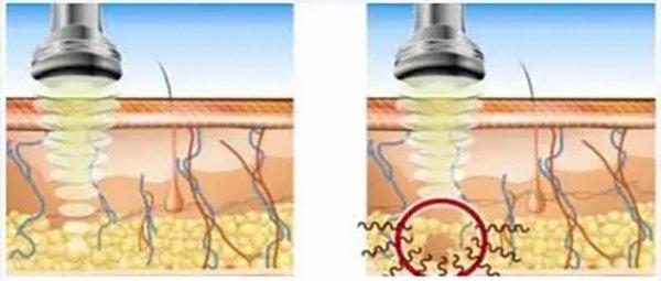 RF Cavitation Skin Tightening and Body Slimming Machine DT-904A How it woks