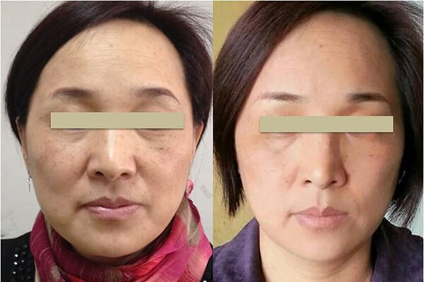 RF Lifting treatment effect