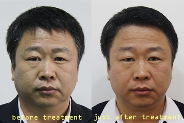 Radio frequency facial treatment 1
