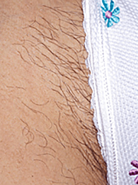 hair removal reatmrnt effect