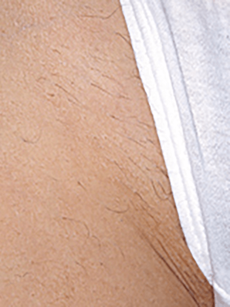 hair removal treatmrnt effect