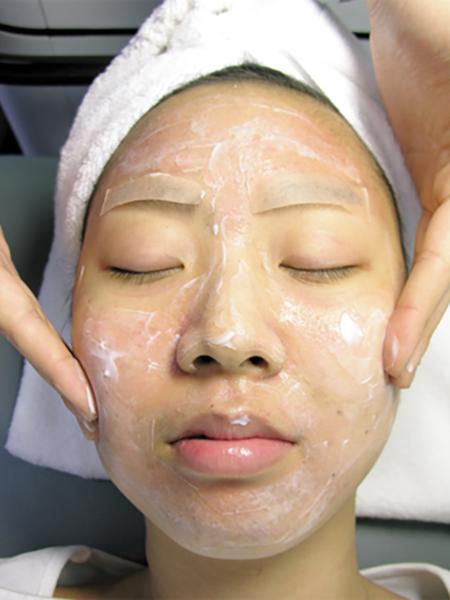 laser nd yag Carbon Laser Facial Treatment HuafeiMedical1