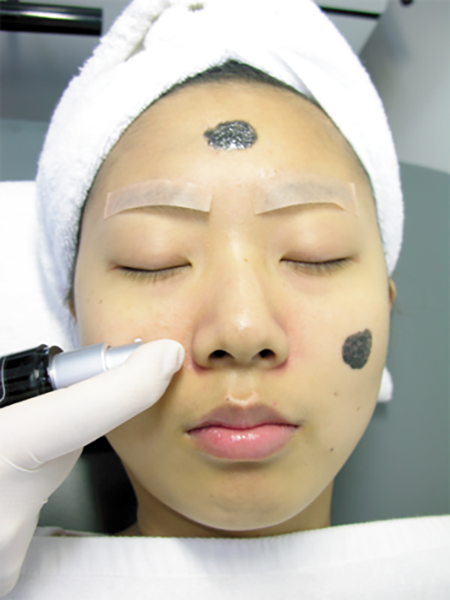 laser nd yag Carbon Laser Facial Treatment HuafeiMedical2