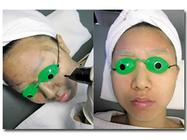laser nd yag Carbon Laser Facial Treatment HuafeiMedical4
