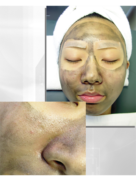 laser nd yag Carbon Laser Facial Treatment HuafeiMedical5