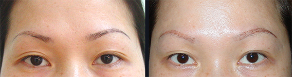 laser nd yag eyebrow Tattoo removal 2